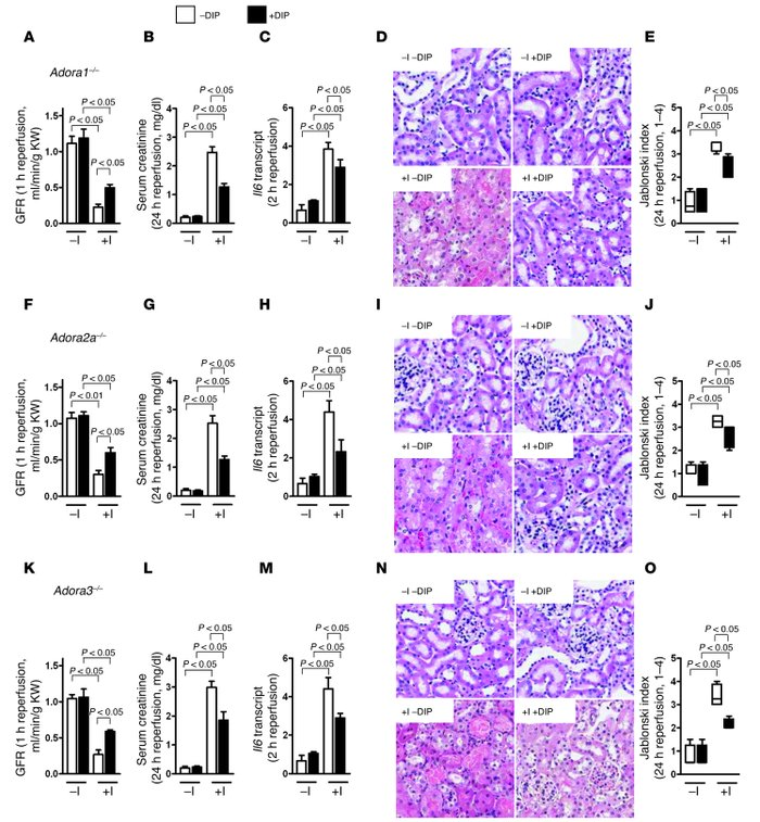 Treatment of ischemic AKI with dipyridamole in mice with knockout of the...