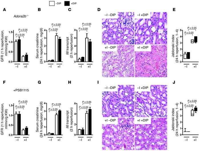 Role of Adora2b in mice pretreated with dipyridamole during ischemic AKI...