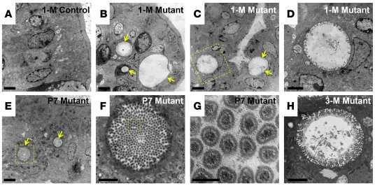 Cdc42-deficient enterocytes develop microvillus inclusions.     TEM mic...