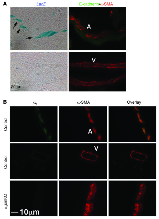 Integrin α9β1 is specifically expressed in airway smooth muscle cells in...