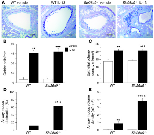 SLC26A9 prevents airway mucus obstruction in the presence of mucin overp...
