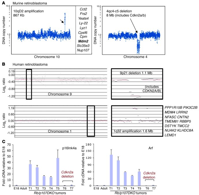CDKN2A/Cdkn2a deletions in retinoblastoma.     (A) Array-CGH analyses o...