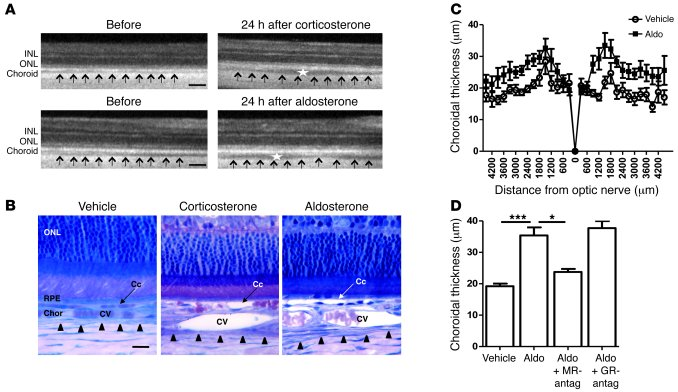 Induction of choroidal thickening by MR activation in rat eyes. (A) In v...