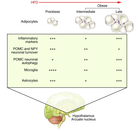 Schematic representation of the effects of a HFD and obesity on inflamma...