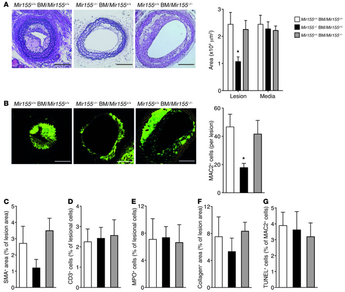 MicroRNA-155 Promotes Atherosclerosis By Repressing