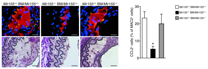 Role of miR-155 in CCL2 expression by lesional macrophages. Expression o...