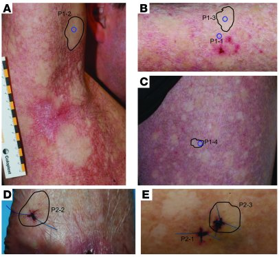 Clinical features indicative of revertant mosaicism in KS. (A–C) P1 exhi...