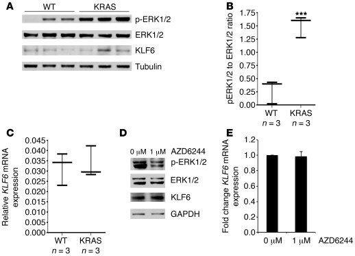 Activated RAS signaling does not affect KLF6 expression. (A) Western blo...