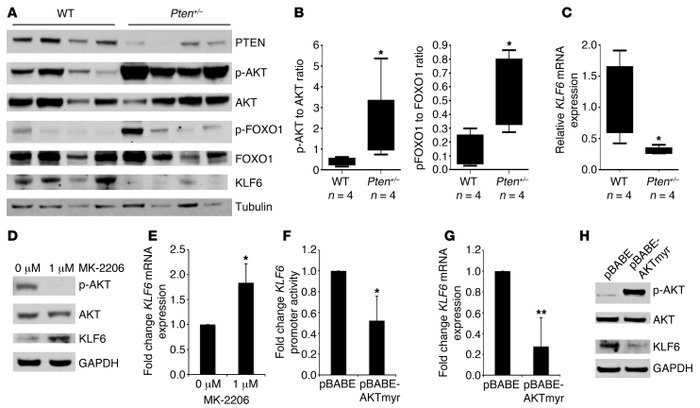 Activated AKT signaling negatively regulates KLF6 expression. (A) Wester...
