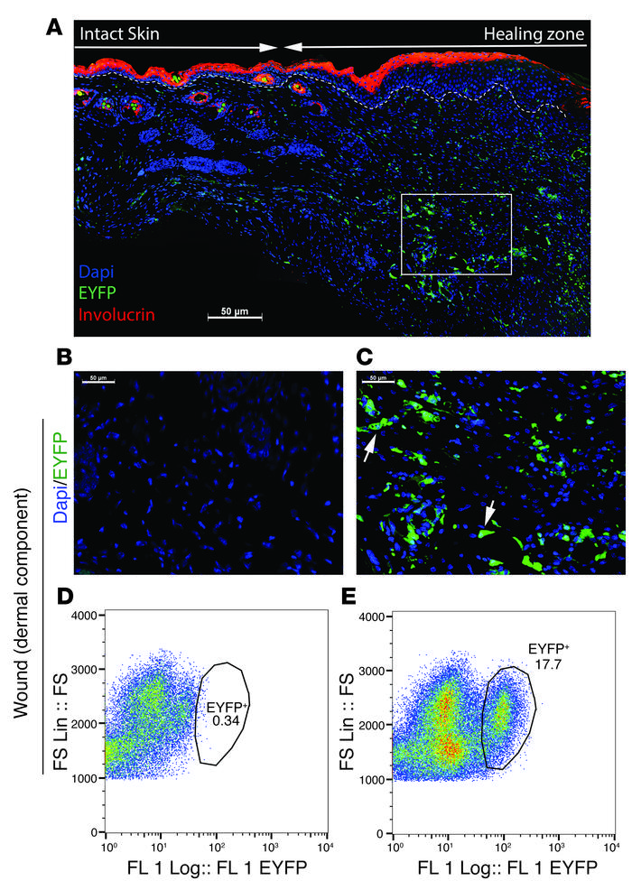 Lysz-expressing myeloid cells contribute to the dermal compartment of wo...