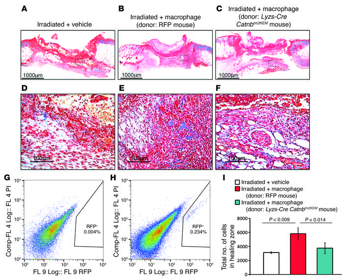 Macrophages deficient in β-catenin cannot rescue deficient wound healing...