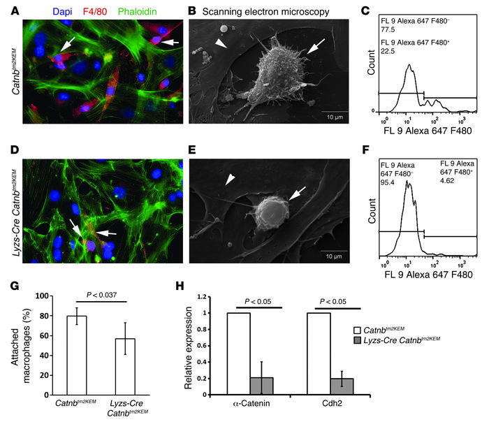 β-Catenin regulates macrophage cell adhesion to fibroblasts. Adhesion as...