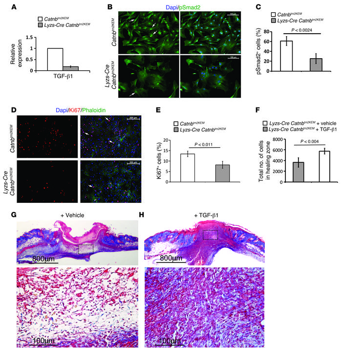 Macrophages lacking β-catenin induce less TGF-β1 signaling, and TGF-β1 p...