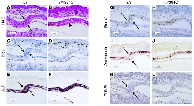 Fgfr2+/Y394C mice show abnormal histology, proliferation, and different...