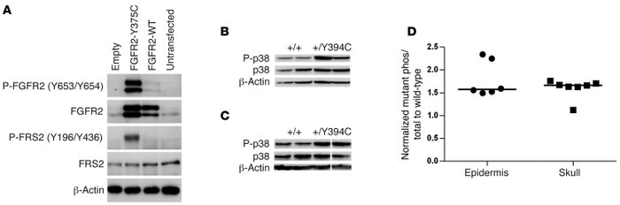 Constitutive activation of human FGFR2 Y375C in culture and increased ph...