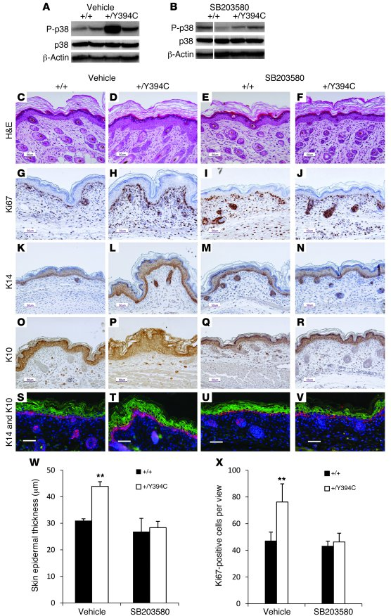 In utero systemic p38 inhibition attenuates skin abnormalities in Fgfr2+...