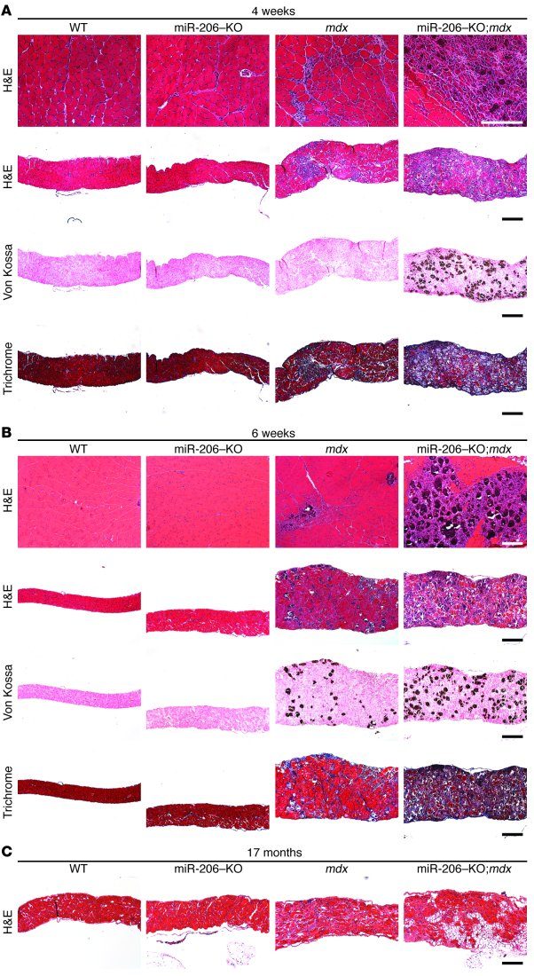 Loss of miR-206 exacerbates the dystrophic phenotype in mdx mice.   (A) ...