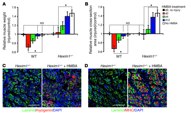 HEXIM1 overexpression reduces regenerative capacity by promoting early d...