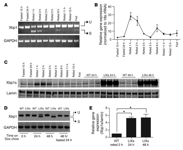 Postprandial activation of hepatic Xbp1s in WT mice and Xbp1s induction ...