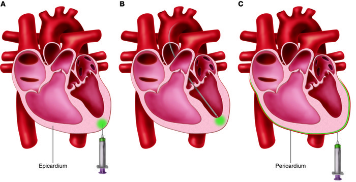 Direct myocardial injection and pericardial injection methods of gene de...