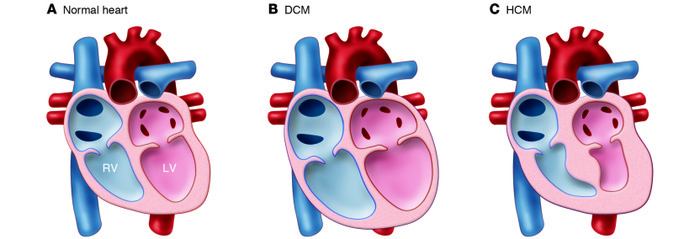 Morphological changes to the heart in cardiomyopathy. (A) Normal heart. ...