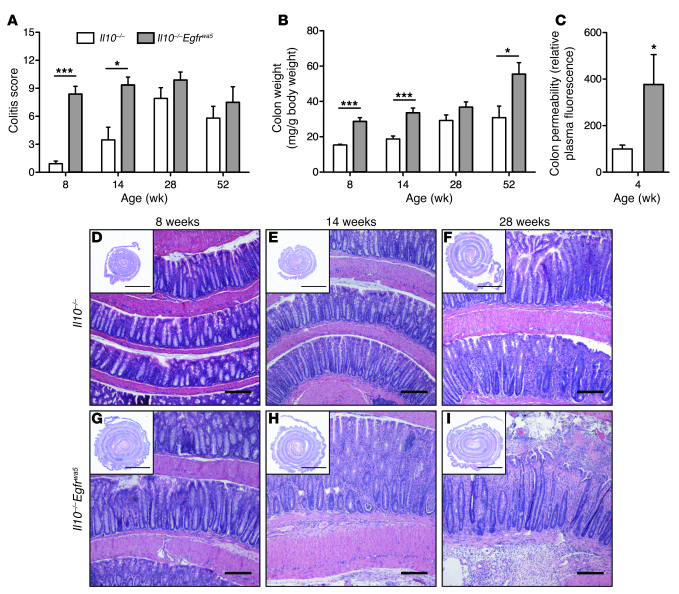 EGFR mitigates colitis in Il10–/– mice.   Colitis scores (A) and colon w...