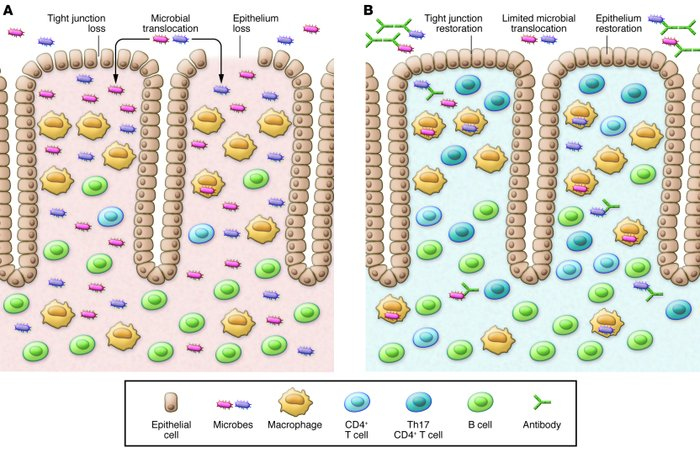Simplified model of intestinal immunopathology and restoration with anti...