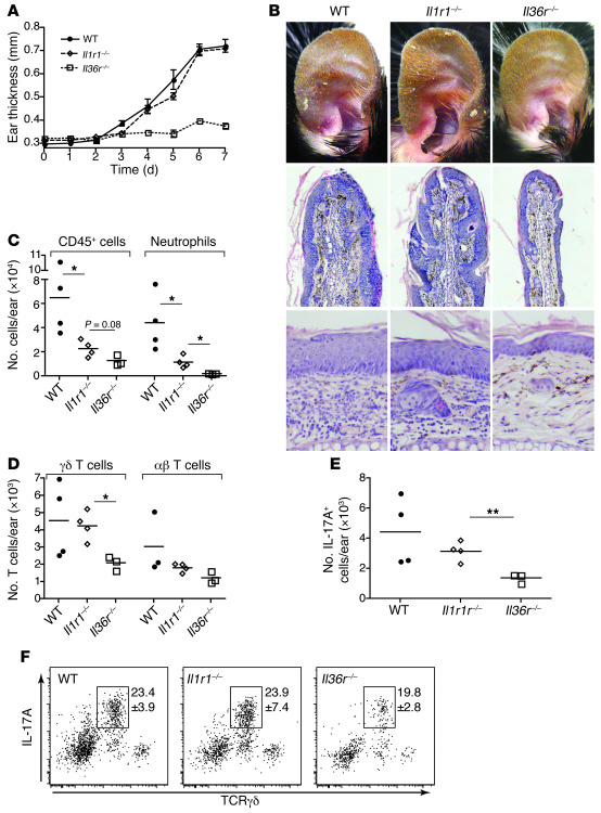 IL-36 promotes IL-17A expression in the skin and IMQ-induced psoriasis i...