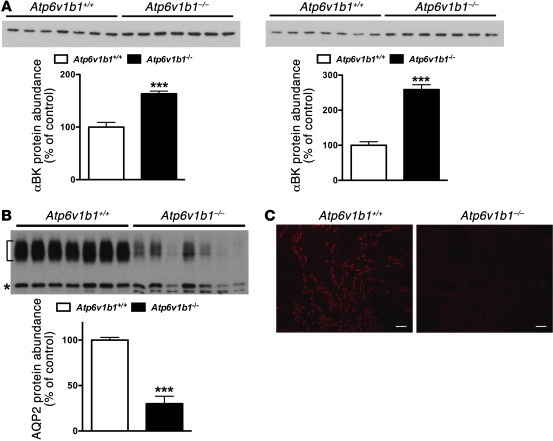 BKCa and AQP2 protein expression assessed in Atp6v1b1–/– and Atp6v1b1+/+...