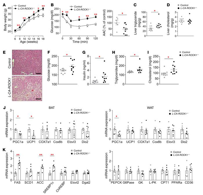 Hepatic ROCK1 activation accelerates adiposity, insulin resistance, and ...
