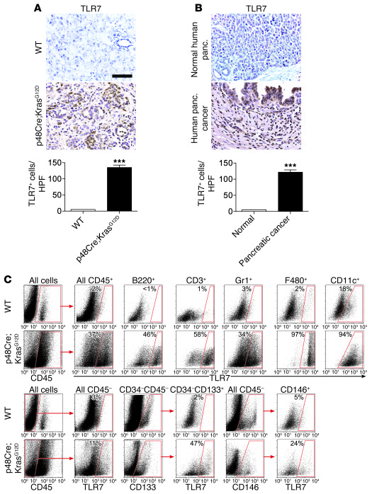 High expression of TLR7 in inflammatory and epithelial cells in pancreat...