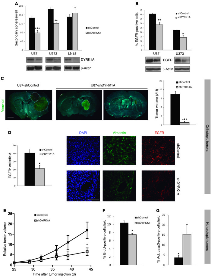 DYRK1A interference affects the levels of EGFR and the tumorigenic capac...