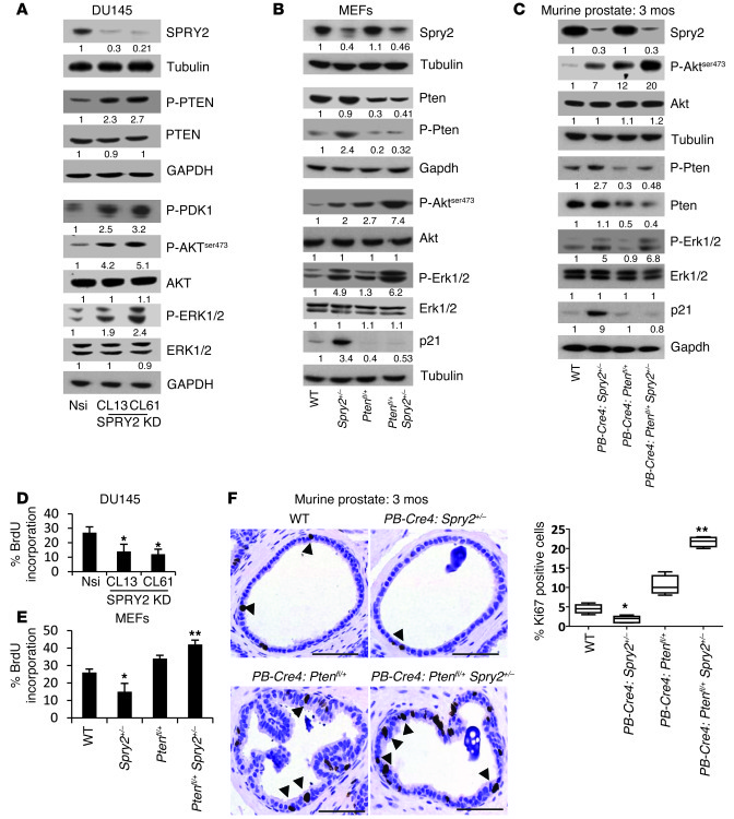 SPRY2 KD decreases cell proliferation despite activation of mitogenic si...