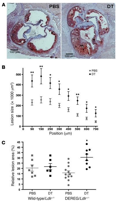 Depletion of transgenic Tregs aggravates atherosclerosis. (A) Representa...