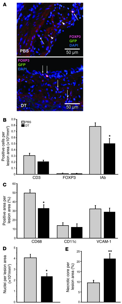 Depletion of Tregs affects cellular composition of atheroma. (A) Represe...