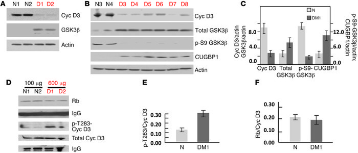 Elevation of active GSK3β and reduction of cyclin D3 in DM1 skeletal mus...