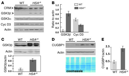 The expansion of CUG repeats increases GSK3β protein in skeletal muscle ...