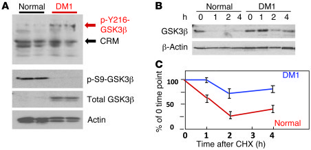 GSK3β is increased in DM1 due to stabilization of the protein. (A) p-Y21...