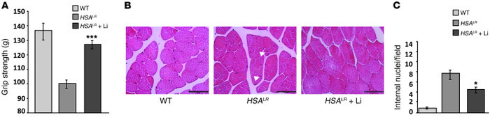 Lithium reduces skeletal muscle weakness in HSALR mice.   (A) Improvemen...