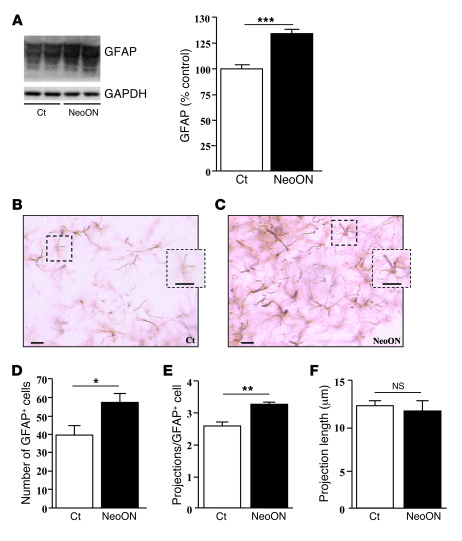 Modification of hypothalamic astrocytes in response to NeoON. (A) GFAP l...