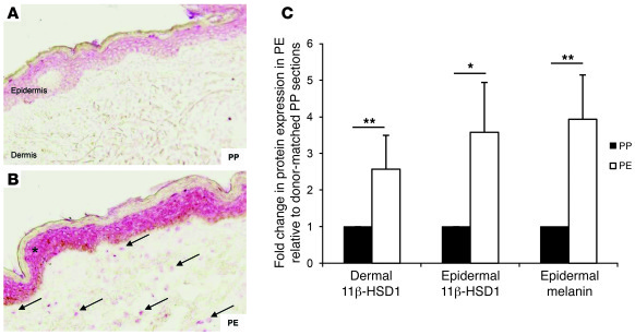 11β-HSD1 expression increases in PE skin. 11β-HSD1 staining was increase...