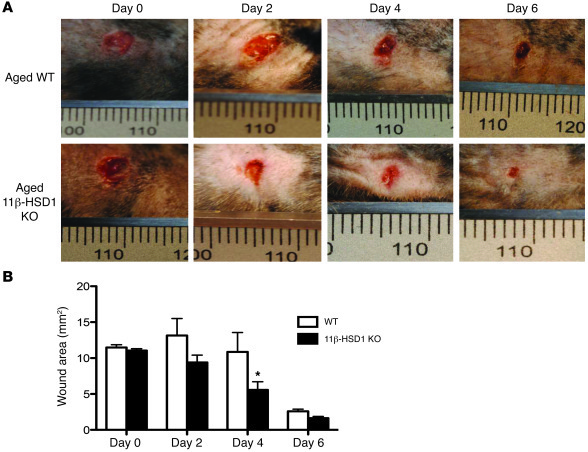 Accelerated healing in aged 11β-HSD1 KO mice. (A) Representative images ...