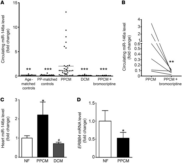 miR-146a is elevated in plasma and LV tissue of patients with acute PPCM...