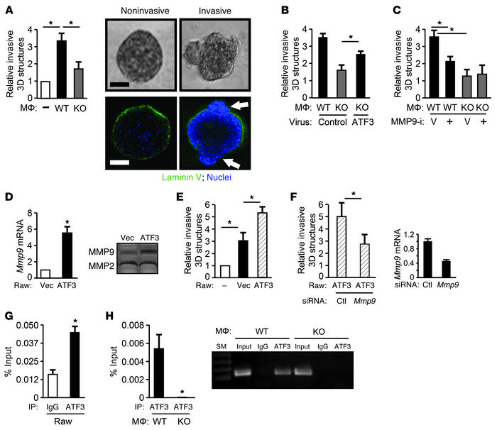 MMP9 plays a role in the ability of ATF3 in macrophages to facilitate in...
