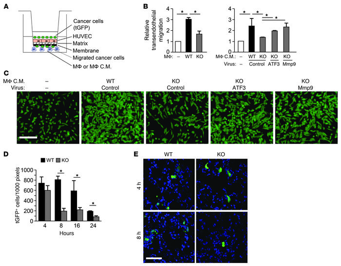 ATF3 facilitates the ability of macrophages to enhance breast cancer cel...