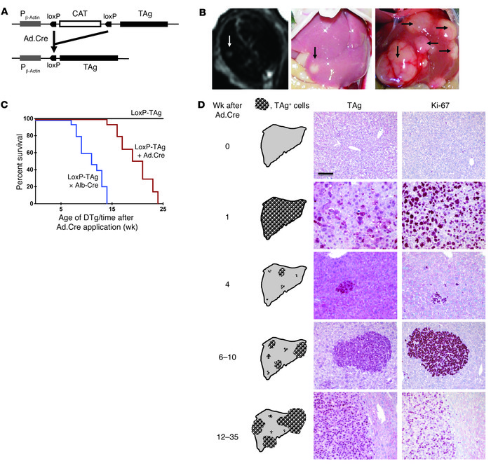 LoxP-TAg transgenic mice develop HCC after i.v. injection of Ad.Cre. (A)...