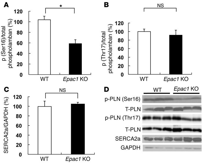 Phosphorylation of PLN on serine-16 and threonine-17 and SERCA2a express...