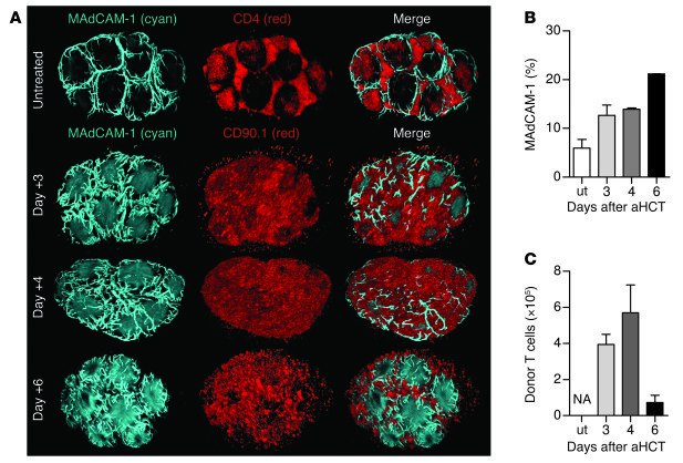 Visualizing and quantifying cellular changes after allo-HCT in 3D. Bone ...
