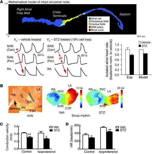 SAN cell death and fibrosis lead to decreased conduction velocity and sp...