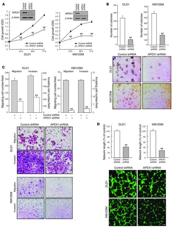 APEX1 regulates tumorigenic features in DLD1 and KM12SM human colon canc...
